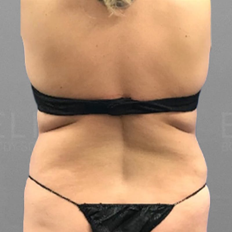 Lower back fat removal before