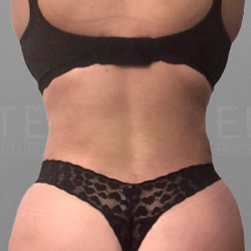 Lower back fat removal after