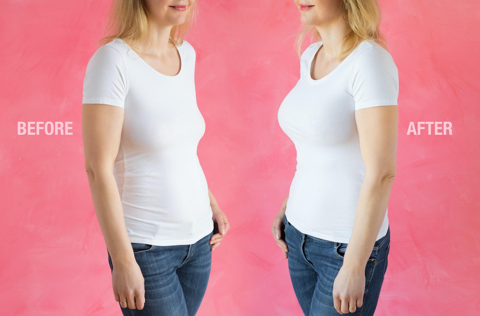 breasts sag after pregnancy