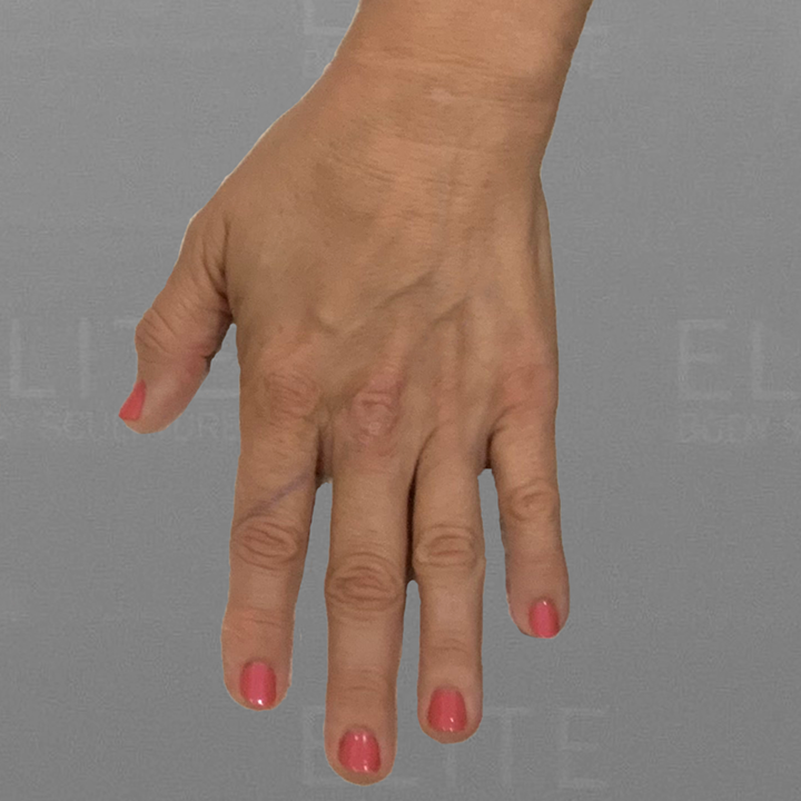 hand airsculpt before
