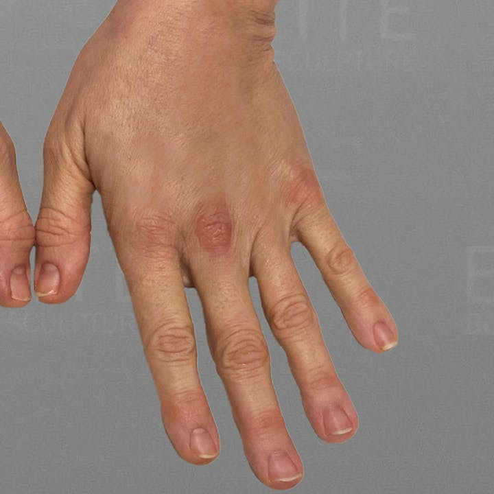 hand airsculpt after