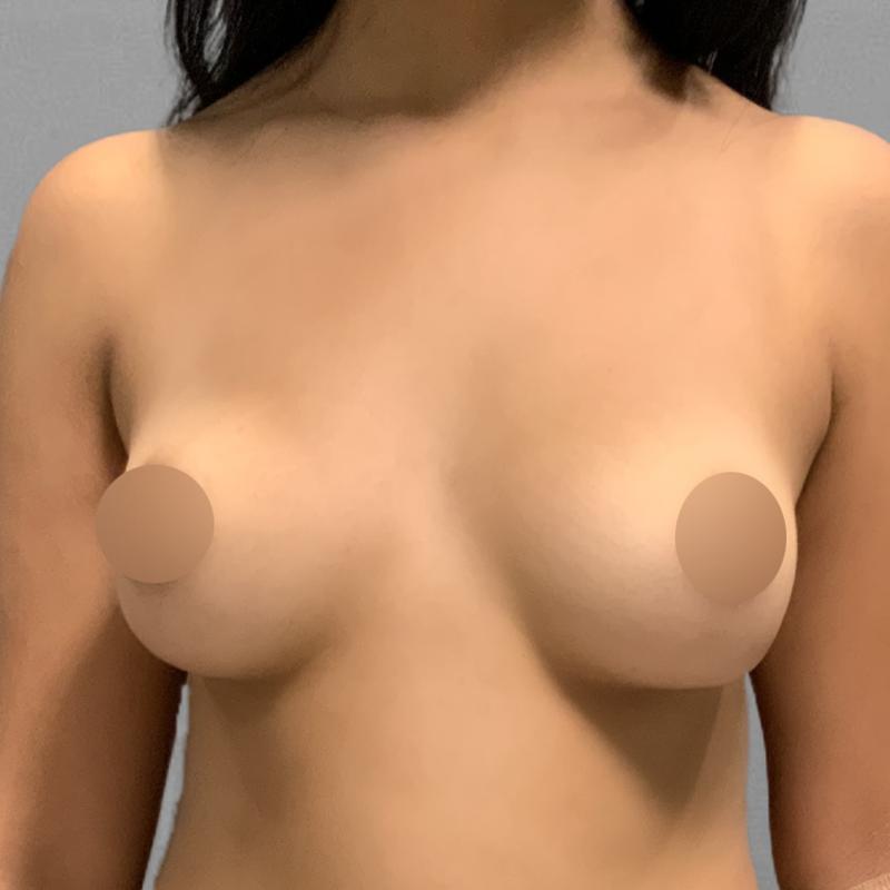 AirSculpt Breast Enhancement Before