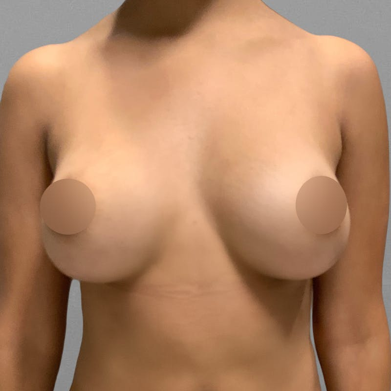 AirSculpt Breast Enhancement After