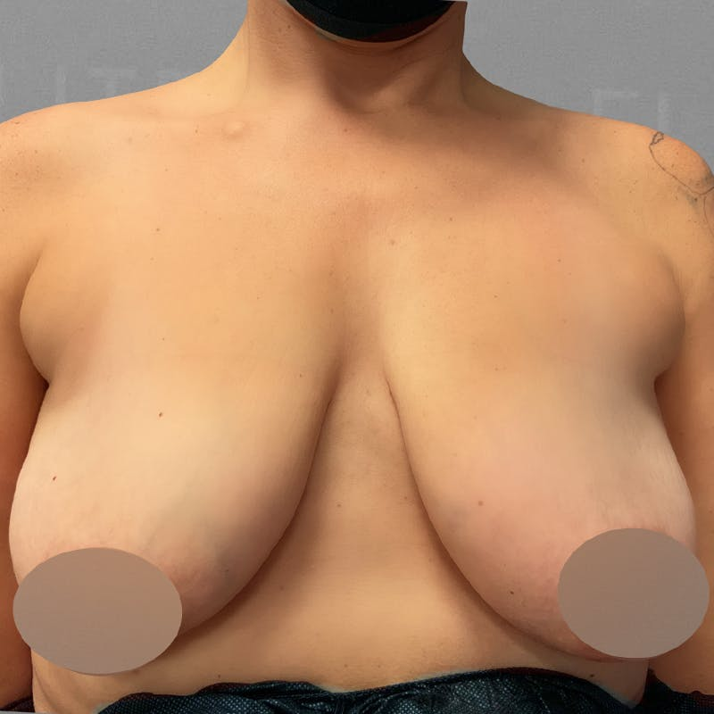 AirSculpt Breast Enhancement Before