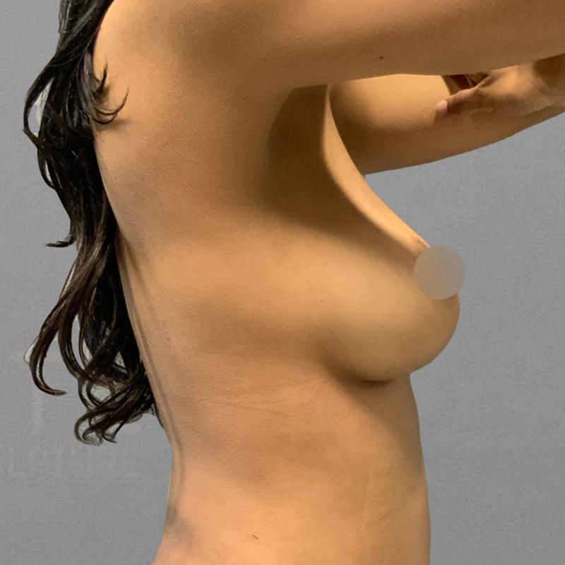 AirSculpt Breast Enhancement After