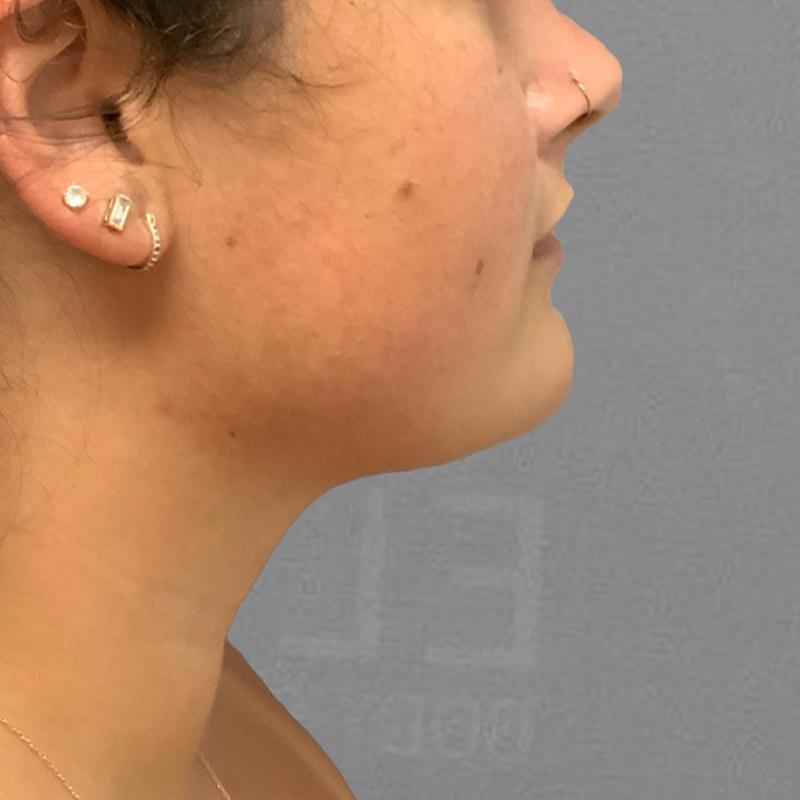 Chin fat removal