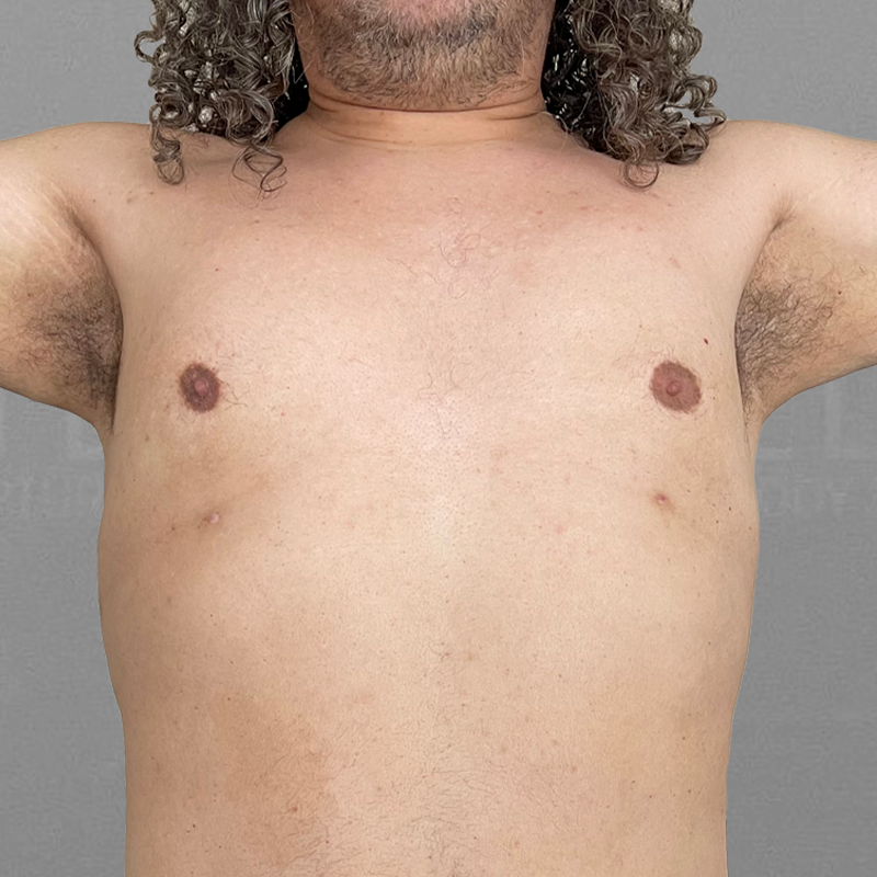 After AirSculpt male breast reduction