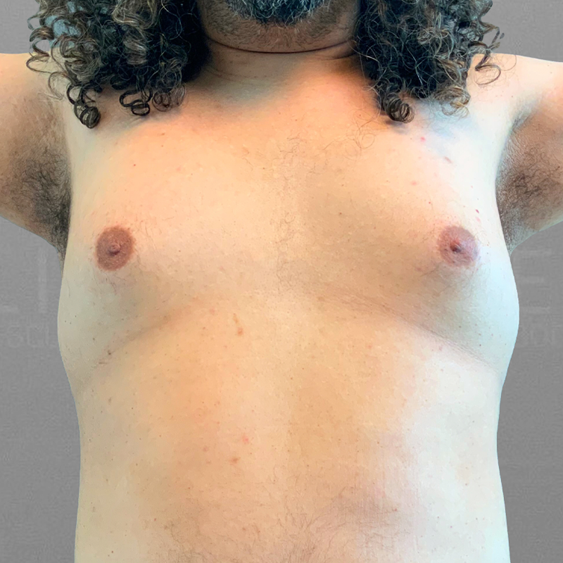 Before AirSculpt male breast reduction