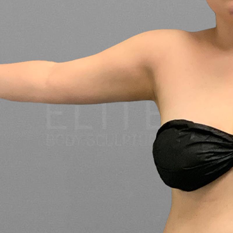AirSculpt arm fat removal