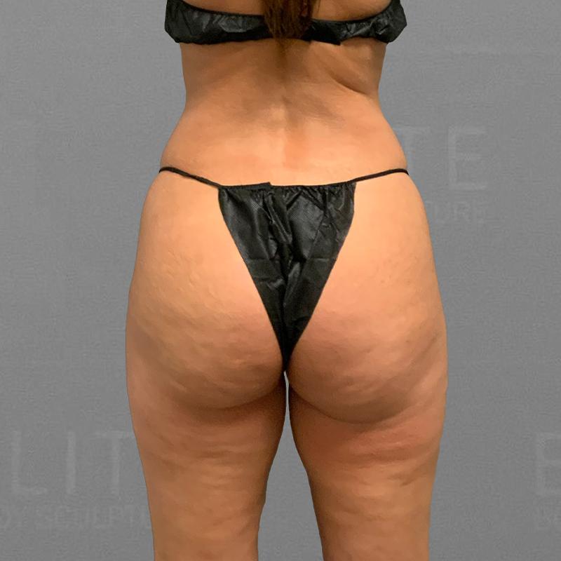 before inner thigh airsculpt