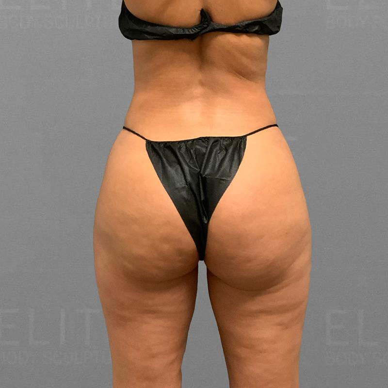after inner thigh airsculpt