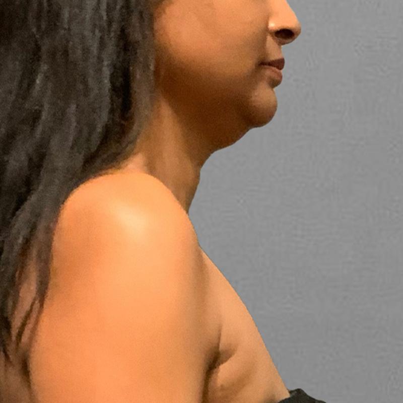 before chin airsculpt