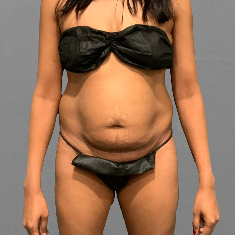 Before lower stomach airsculpt