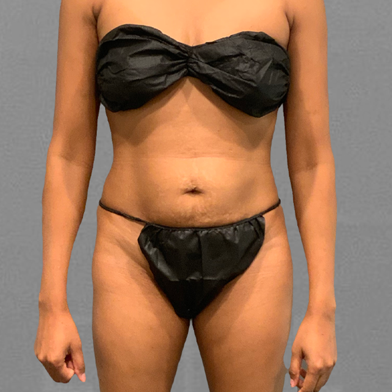 After lower stomach airsculpt