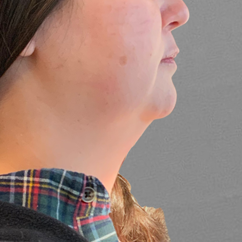 Before chin fat removal with airsculpt