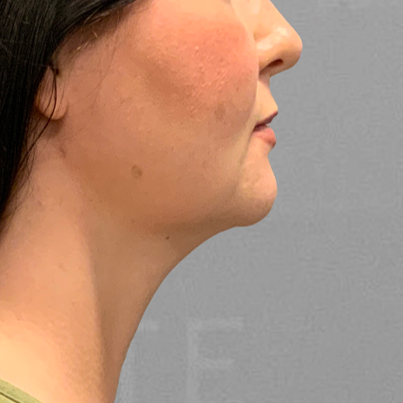 After chin fat removal with airsculpt