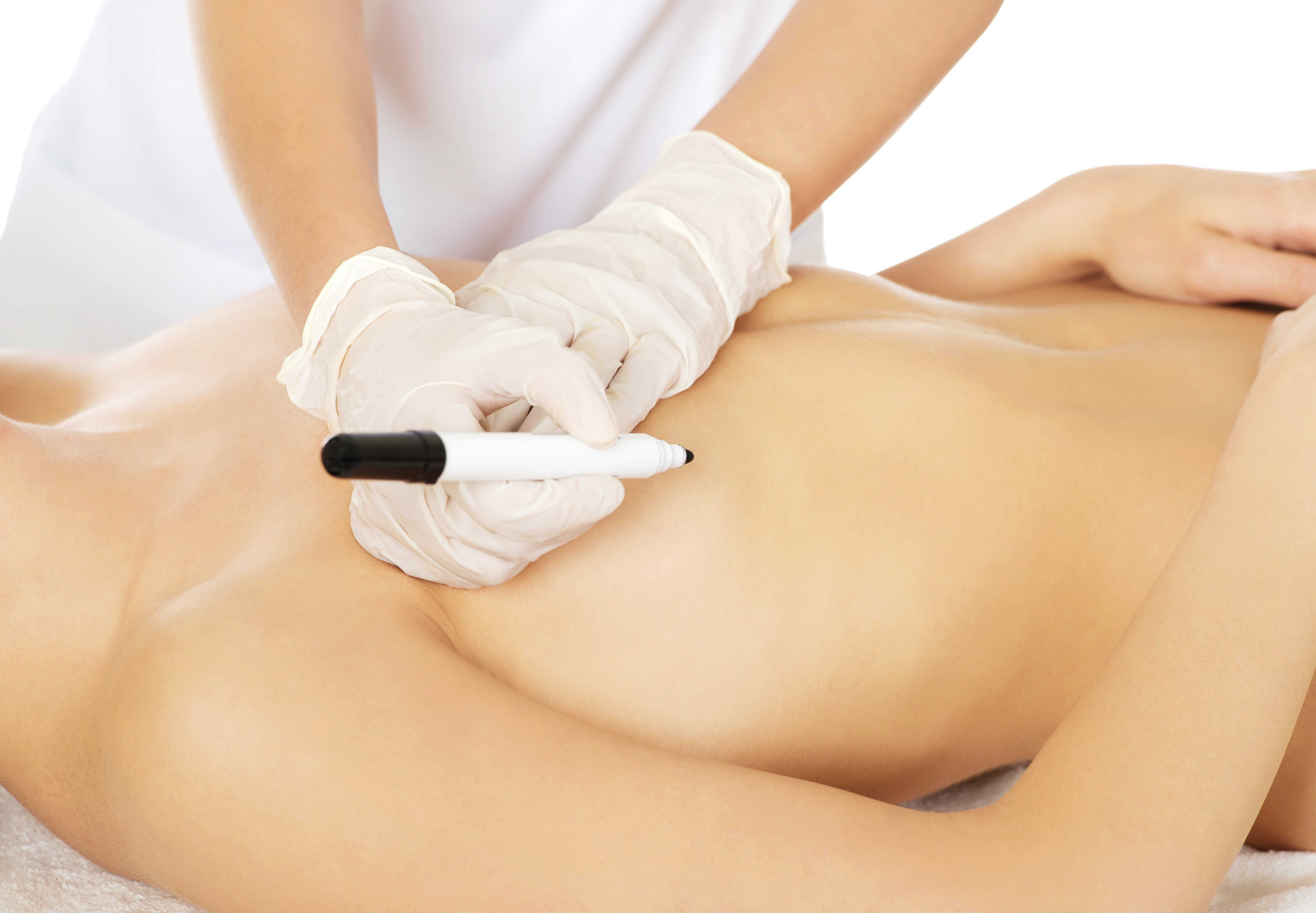 Tips and Alternatives for Minimizing Breast Implant Scars