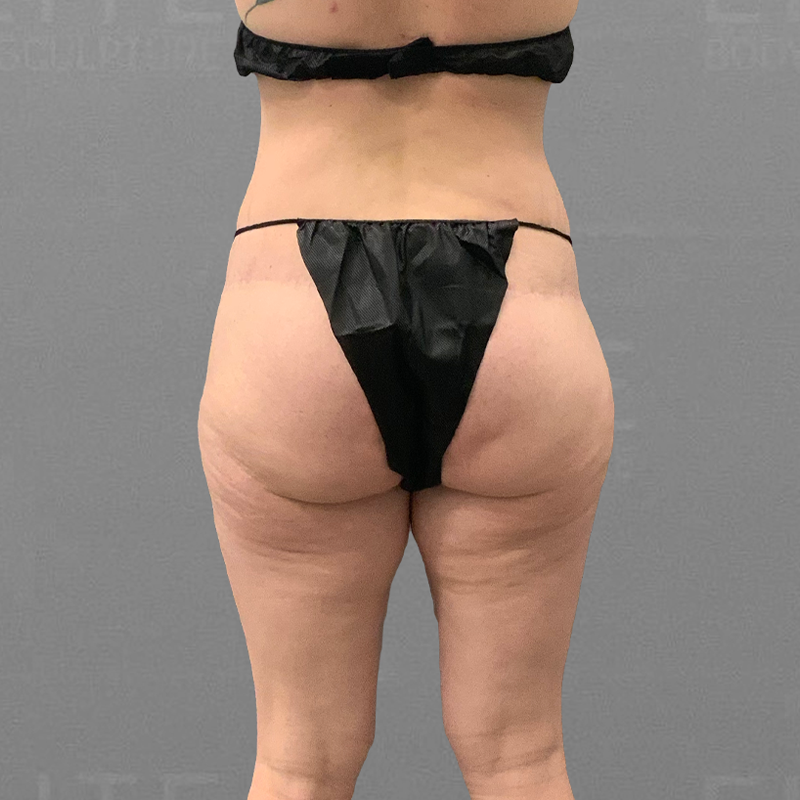 before airsculpt inner thigh liposuction