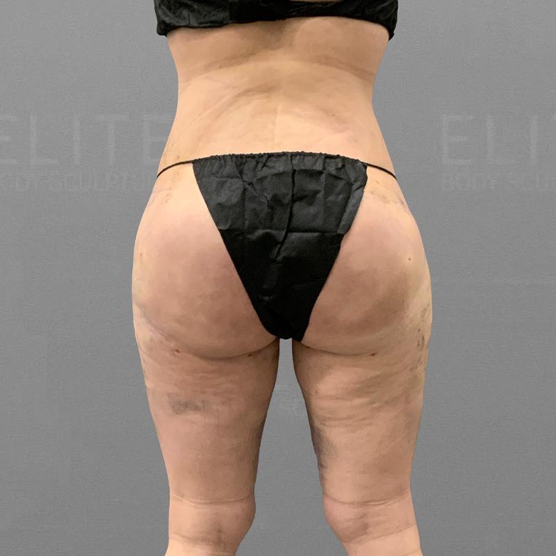 After inner thigh fat liposuction airsculpt