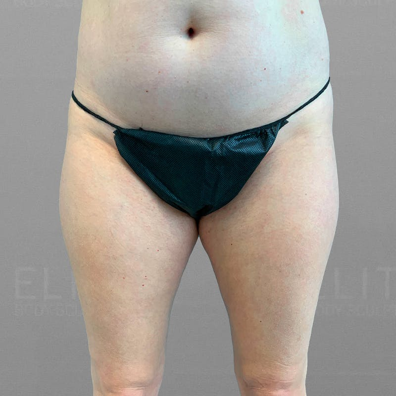 inner thigh airsculpt before-after