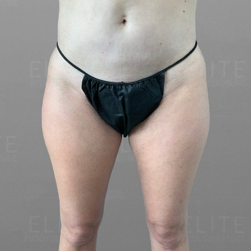 inner thigh airsculpt before/after