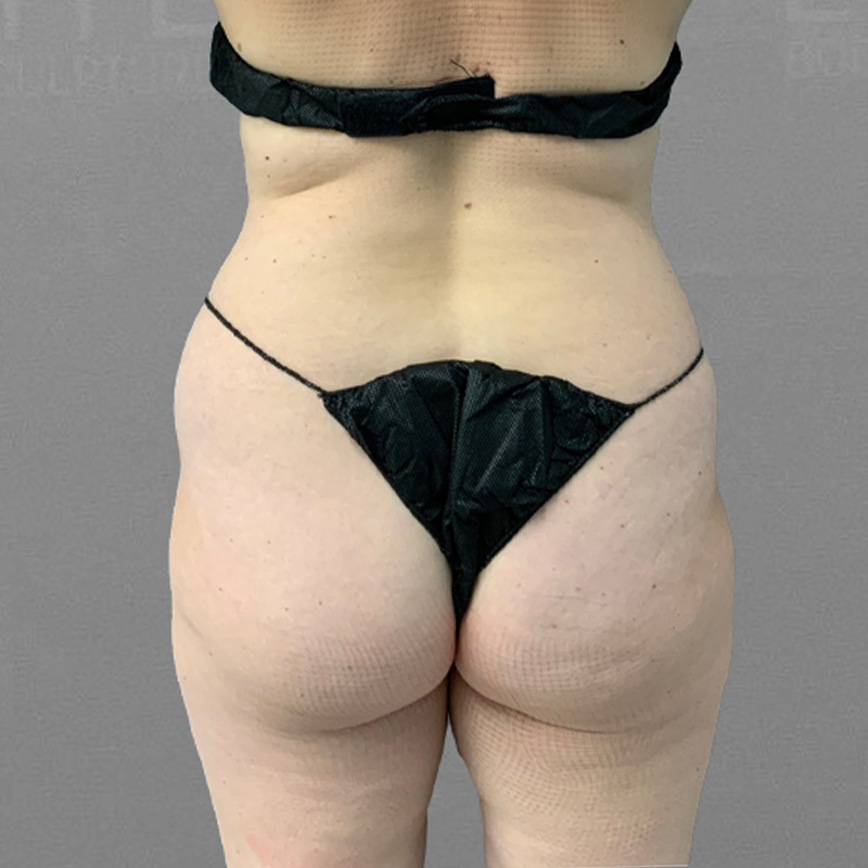 before airsculpt inner thigh fat removal