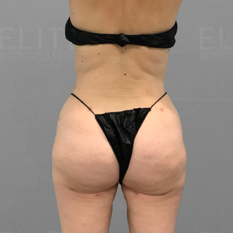 airsculpt inner thigh fat removal.