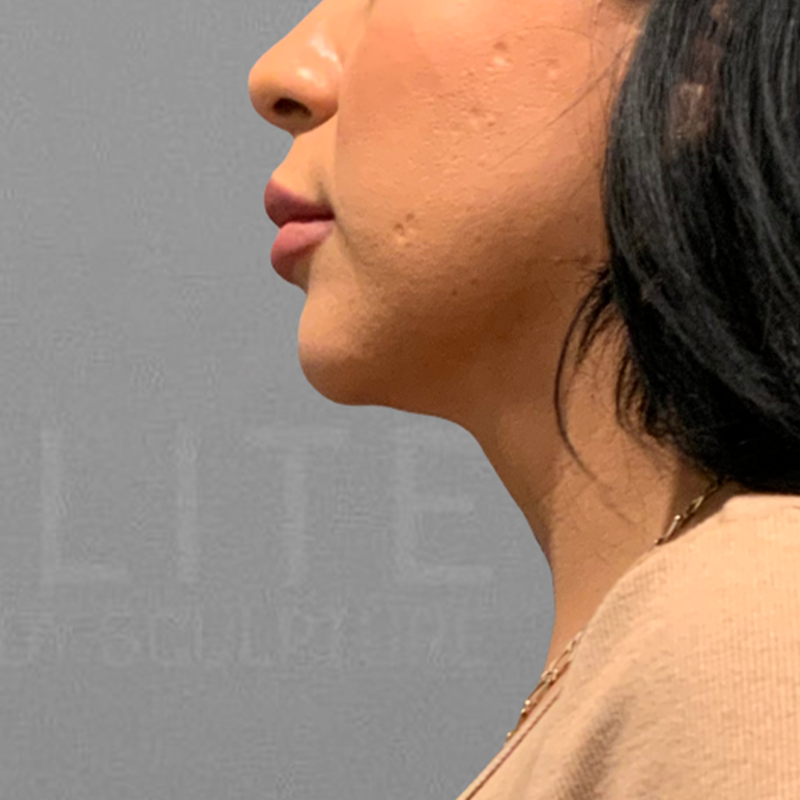 Chin AirSculpt after