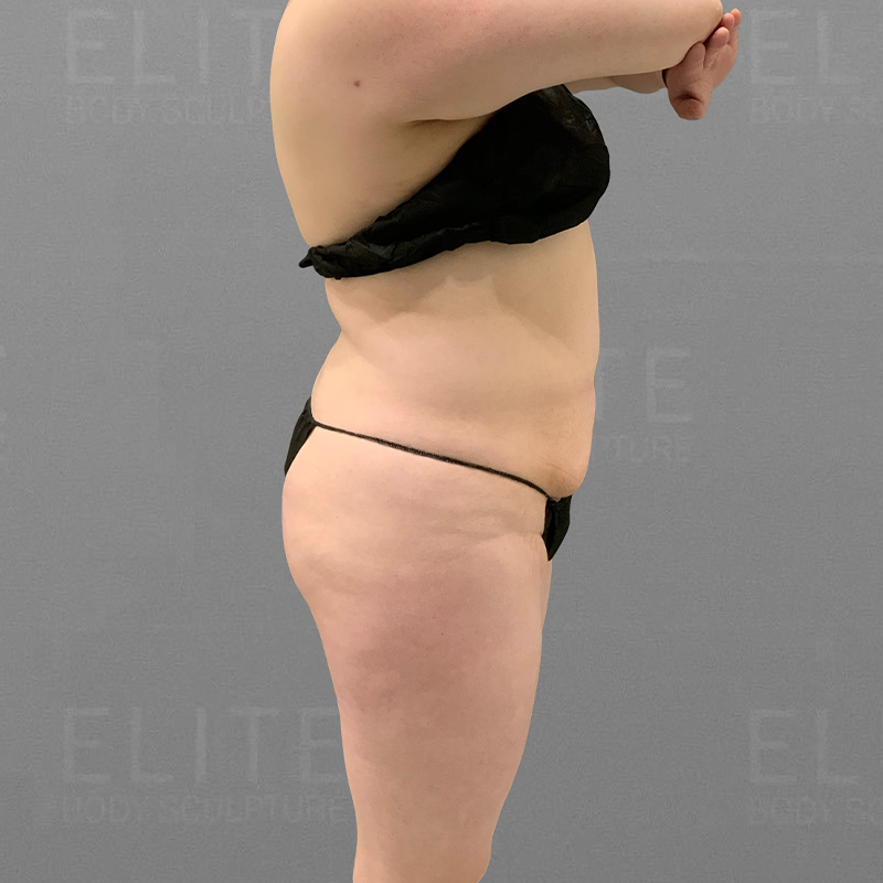 stomach fat removal airsculpt after