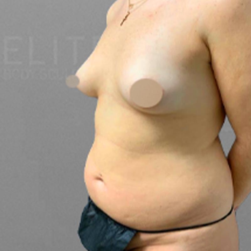 stomach airsculpt before