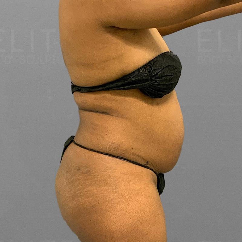 before back bra roll lipo