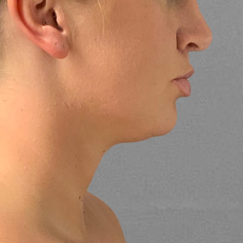 chin airsculpt pre-op