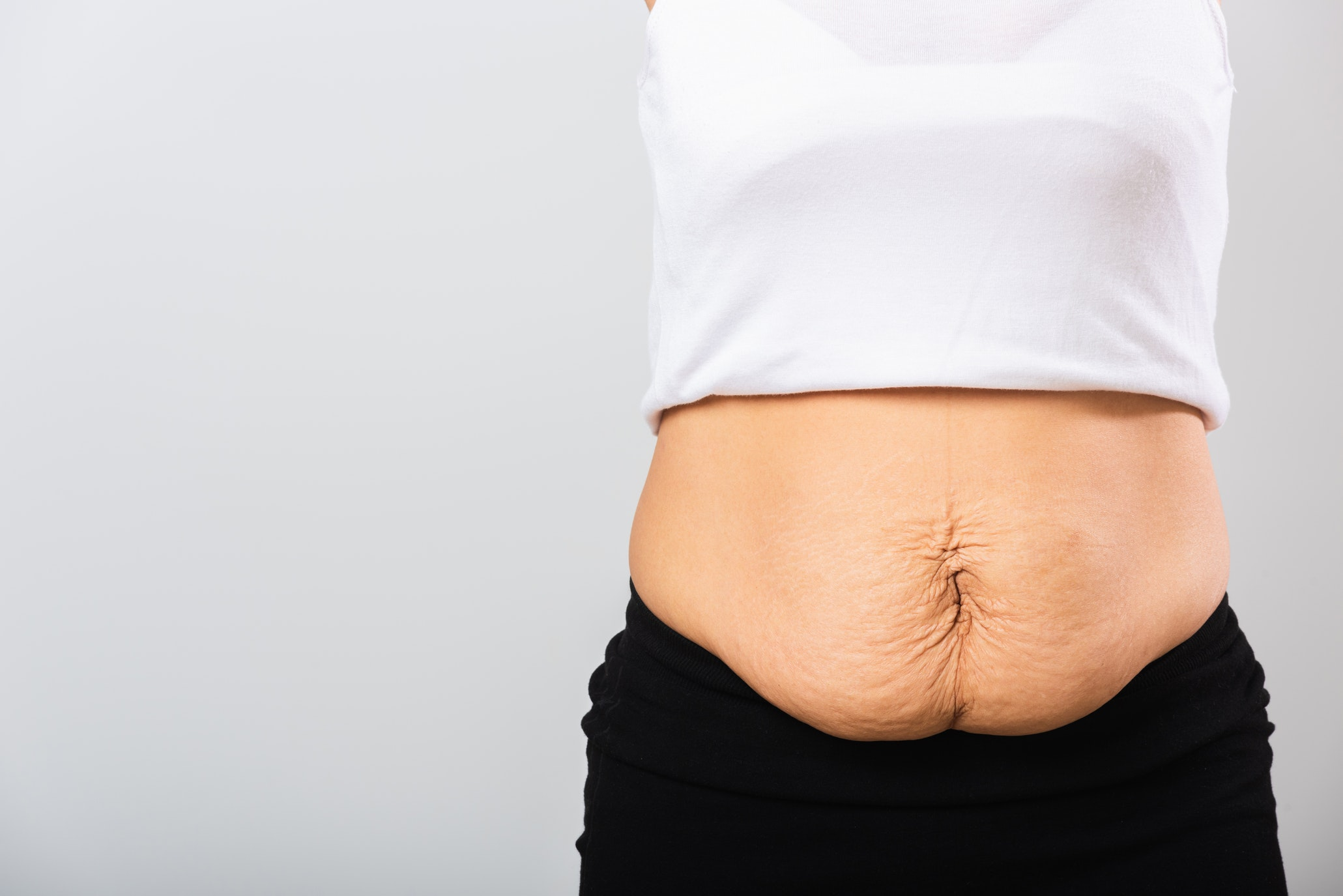 Determining If Liposuction Will Give You a Flat Belly