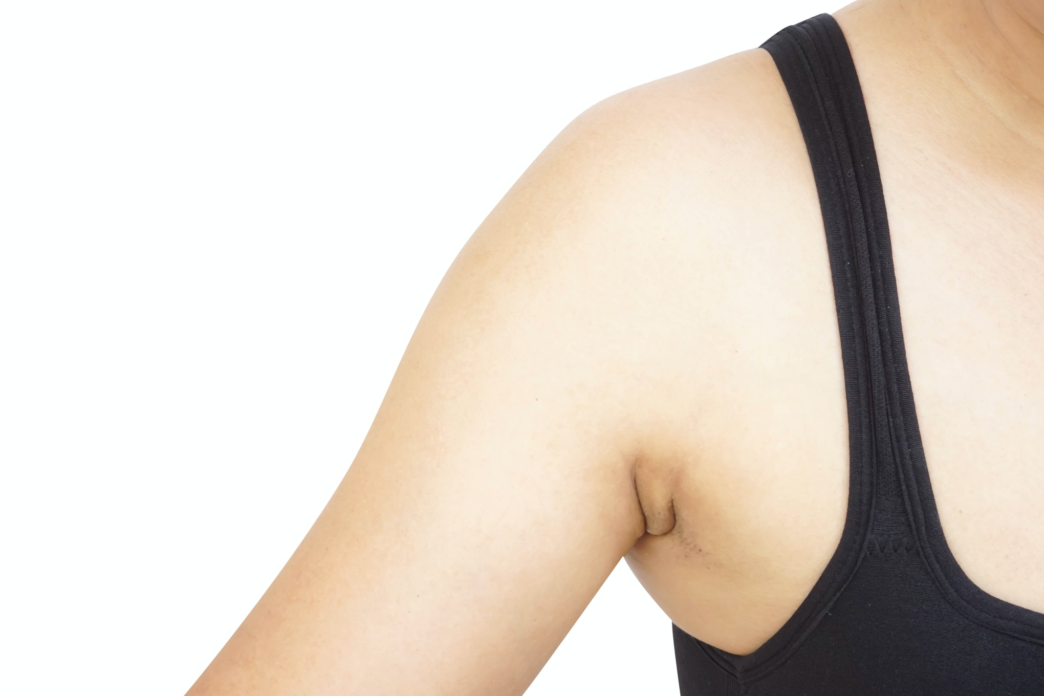 What Are Armpit Rolls and How Do People Treat Them?