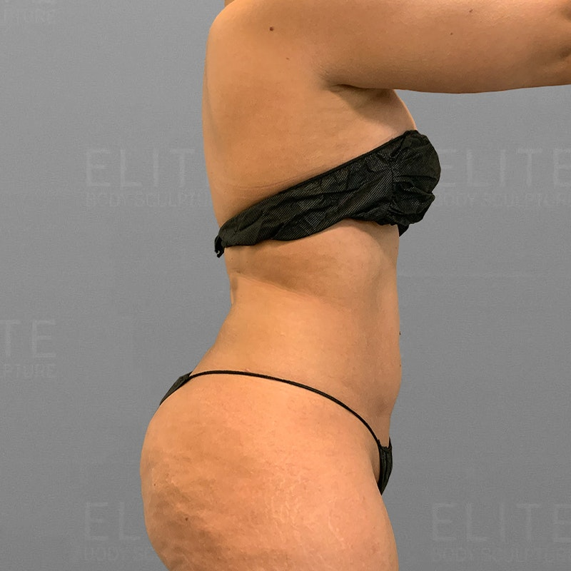 after stomach airsculpt