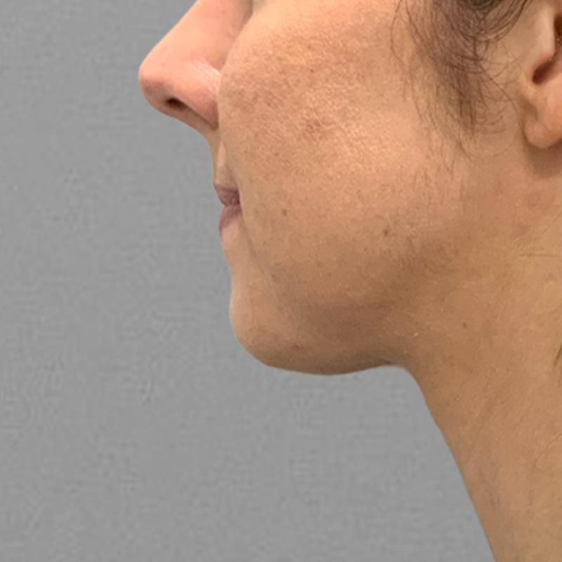 after chin airsculpt