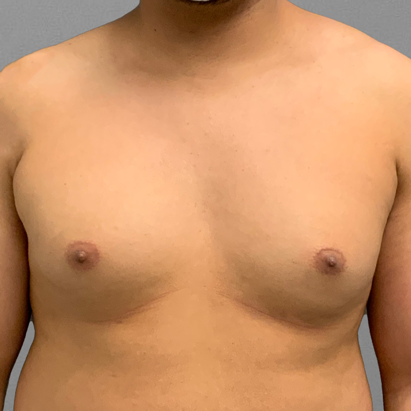 before male chest airsculpt