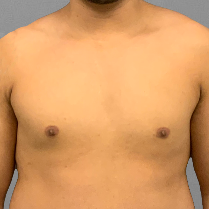 after male chest airsculpt
