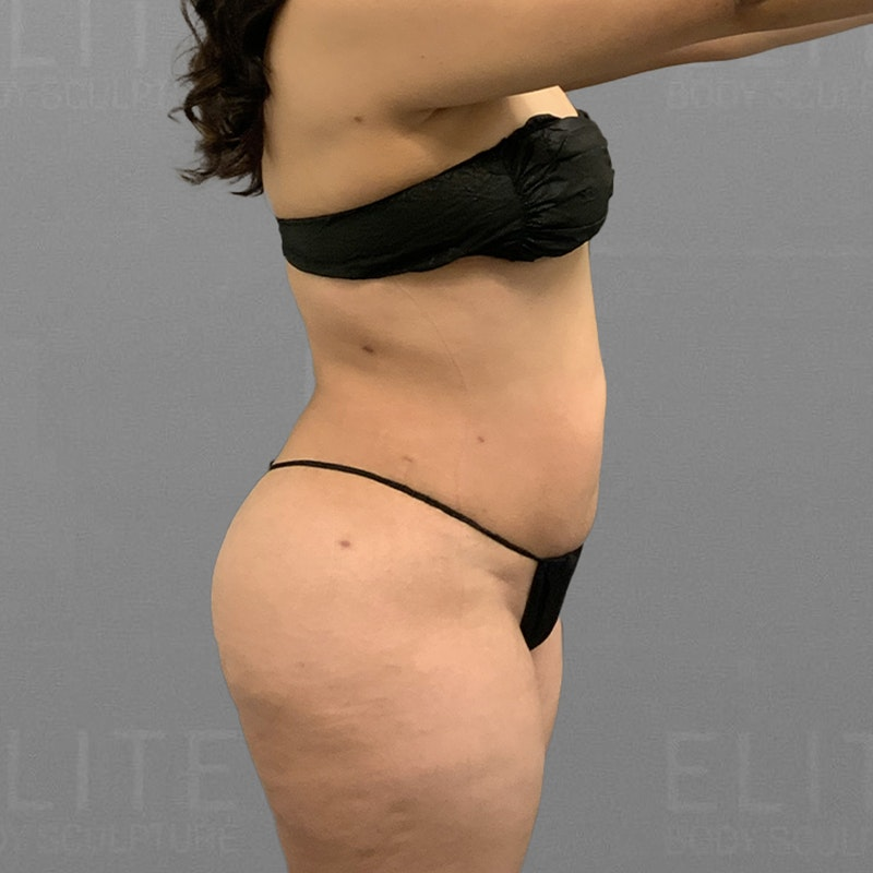 after full abdominal lipo