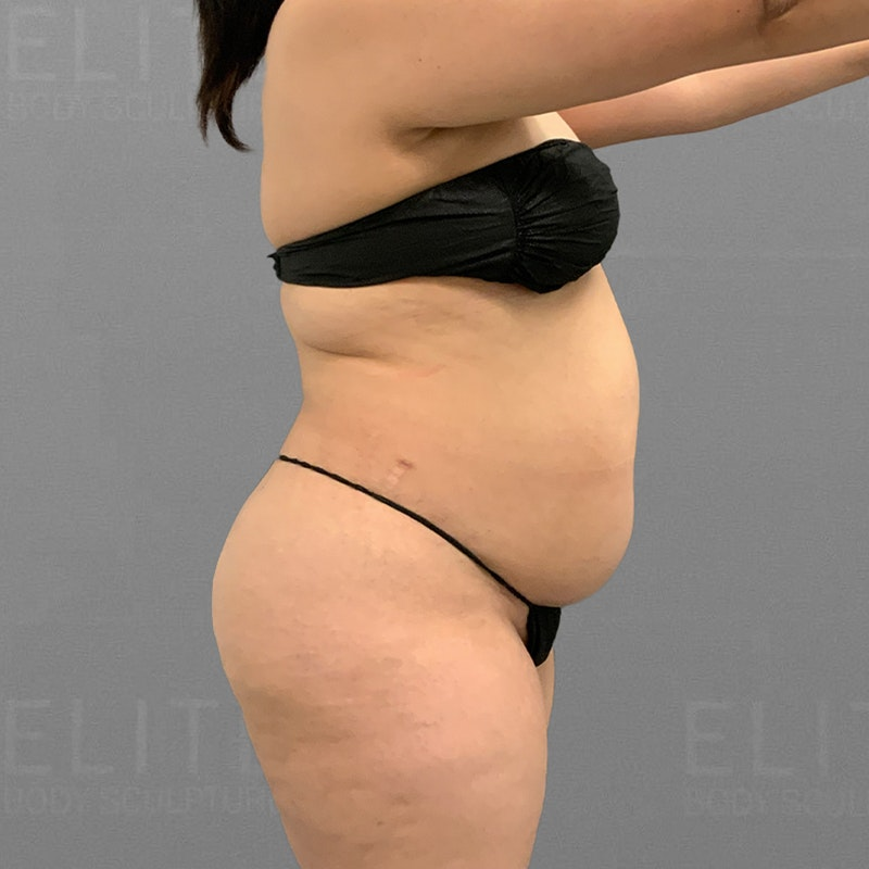 before full abdominal lipo