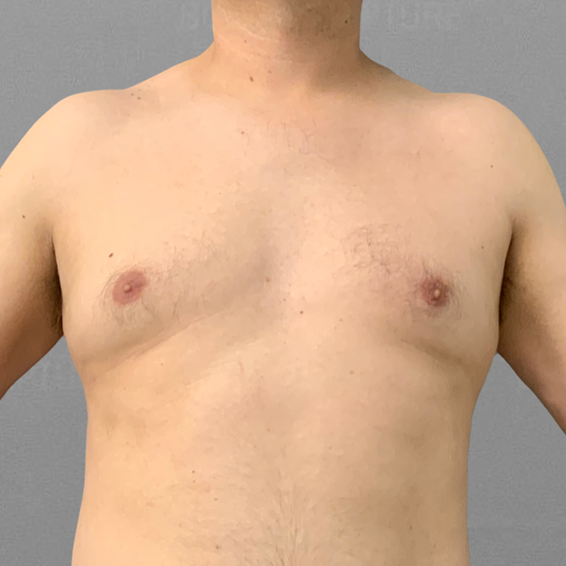 Before AirSculpt male chest reduction
