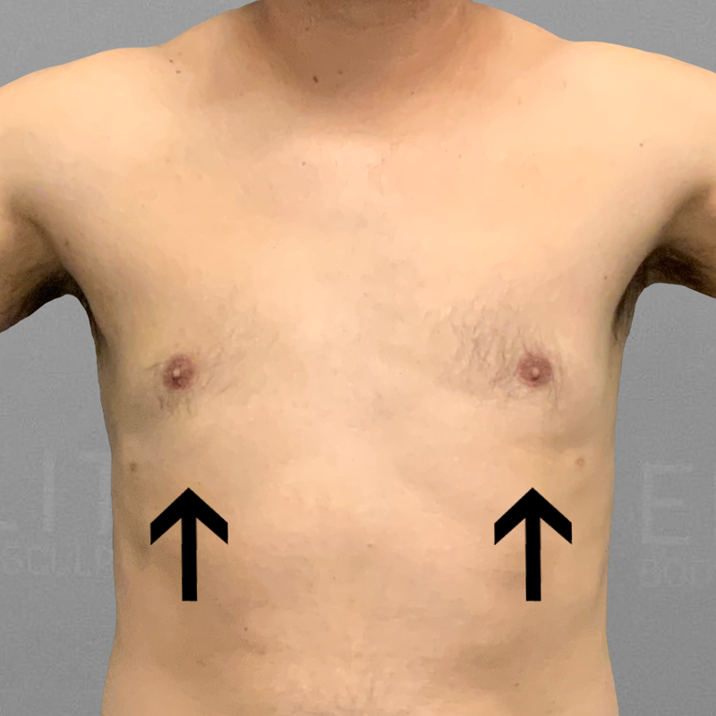 After AirSculpt male chest reduction