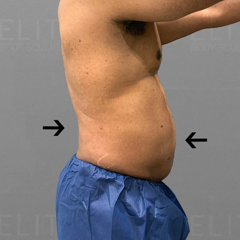 After male stomach airsculpt