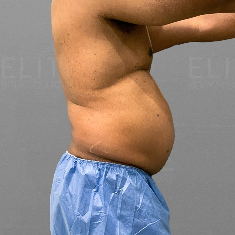 before male stomach airsculpt