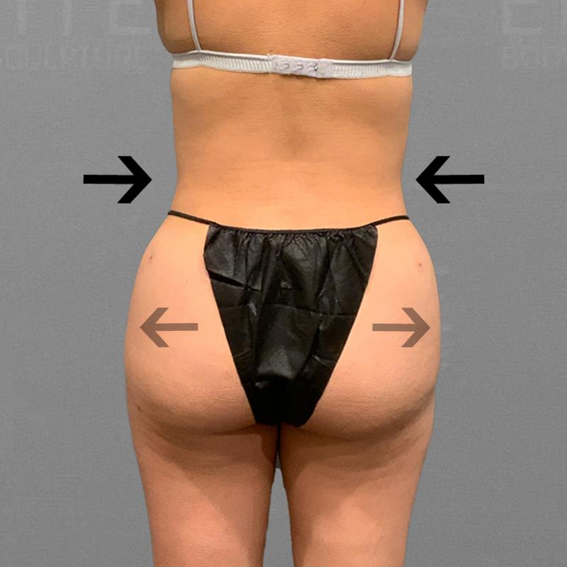 After hip augmentation airsculpt