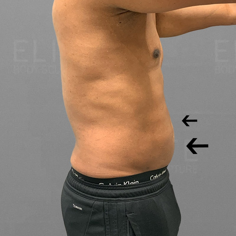 after 48 hour six pack lipo