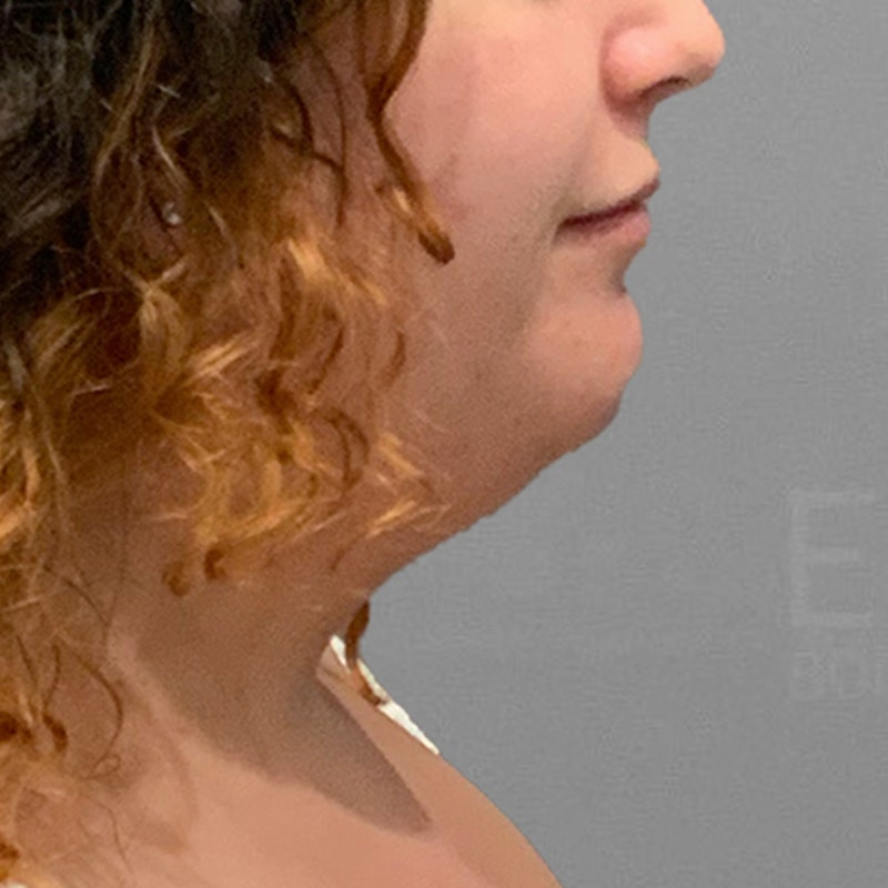 before chin liposuction