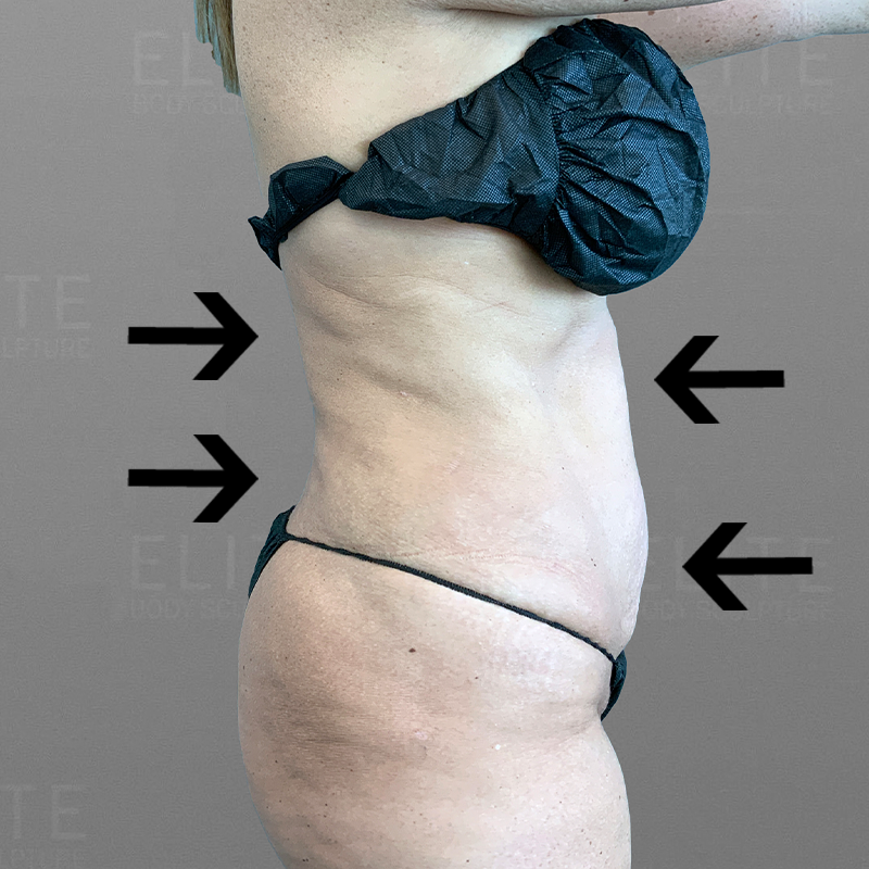 after full ab and back lipo