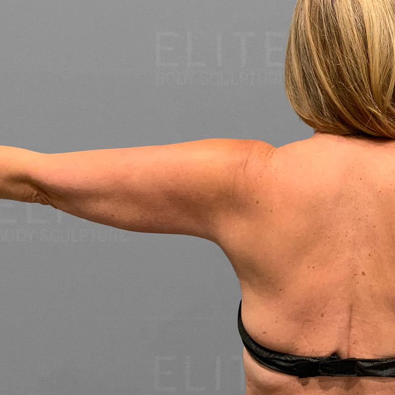 before arm liposuction airsculpt