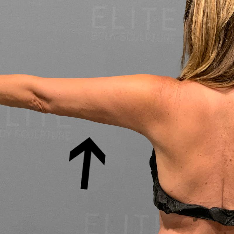 after arm liposuction airsculpt